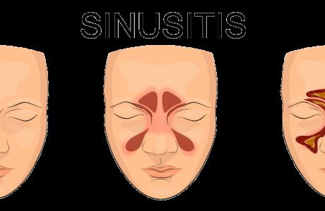 סליידר - סינוסיטיס